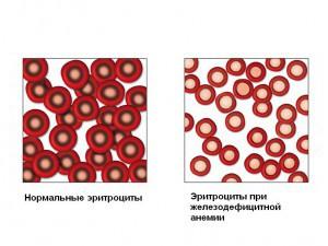 Утомляемость при анемии
